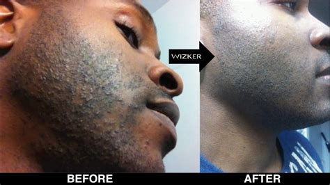 RAZOR BUMPS? WATCH THIS BEFORE YOU SHAVE! - YouTube