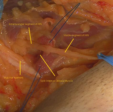 Surgical Treatment of Chronic Groin and Testicular Pain