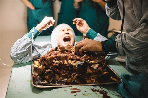 """Grotesque Medical Dinners : """"surgeon simulator game"""""""