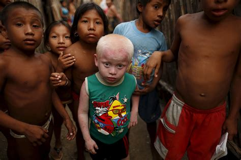Panama: The islands home to hundreds of albinos who must